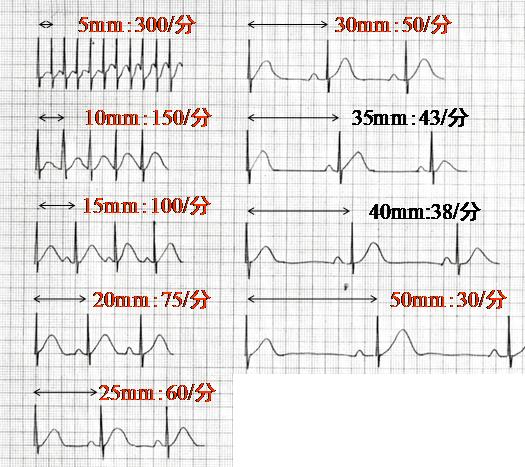 心電図 心拍 数 計算