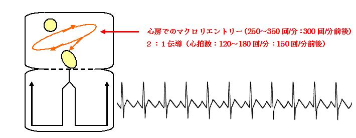 心房粗動の機序と心電図
