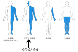 巣症状表1