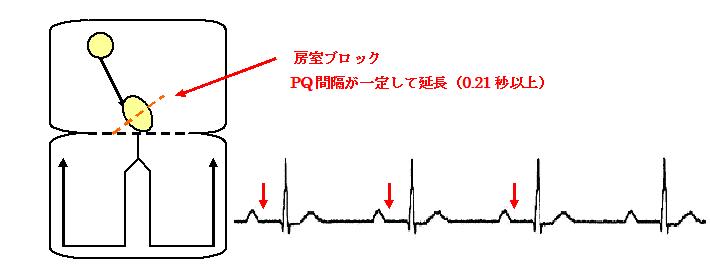 図11-1