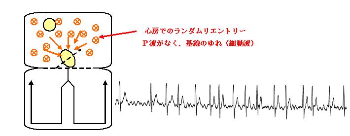 頻拍性心房細動(発作性心房細動)
