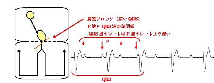 図11-7