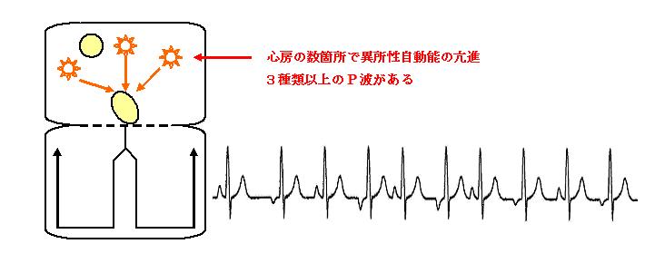 多源性心房頻拍の機序と心電図