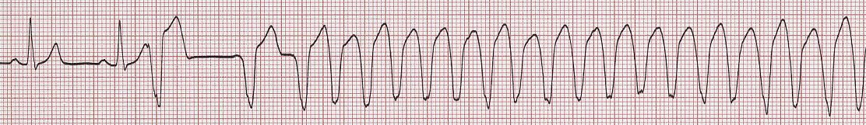 R on Tからの心室頻拍