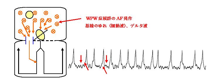 症候群を合併した心房細動(偽性心室頻拍)