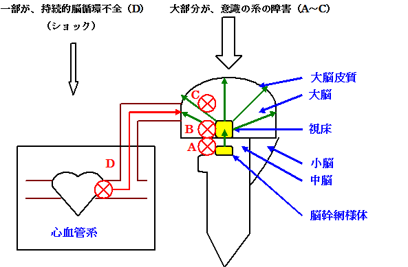 意識障害図2
