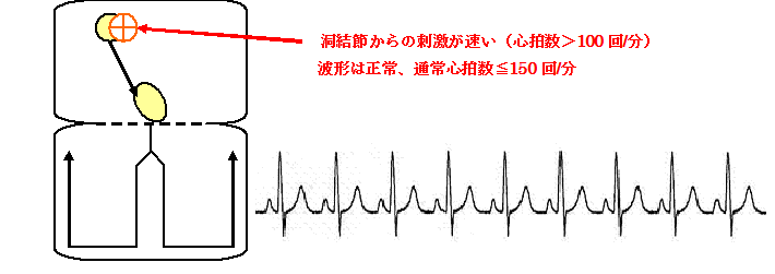洞性頻拍の機序と心電図