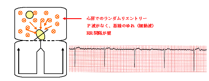 3度房室ブロックを合併した心房細動