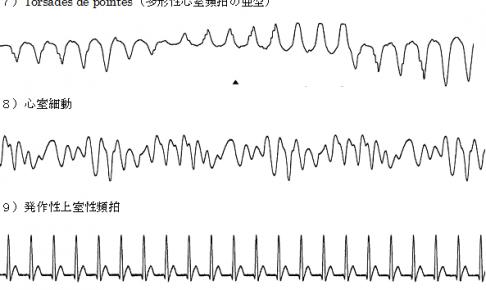 心電図001