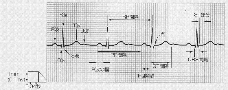 心電図の用語、意味