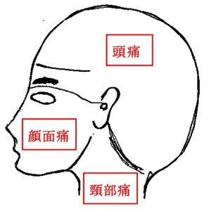 頭痛図1-02