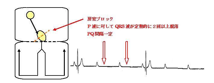 図11-5