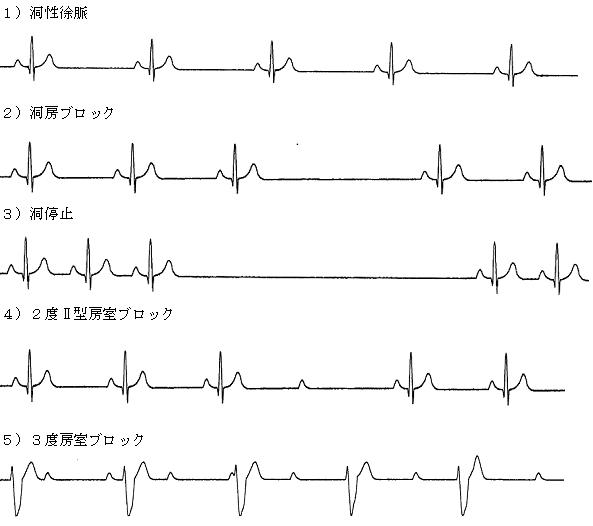 めまい図4-1