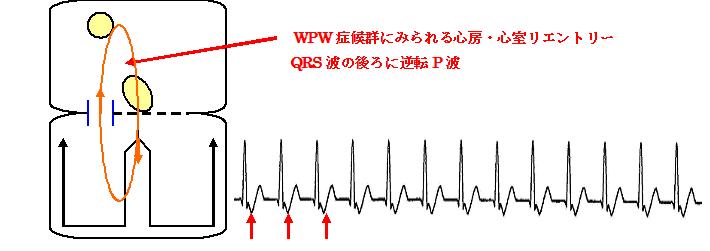 頻拍性不整脈② 発作性上室性頻拍とは|心電図所見、診断、治療について詳しく解説