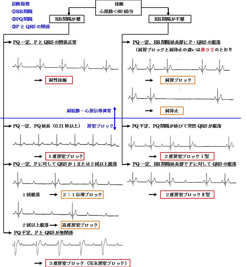 徐脈の診断アルゴリズム