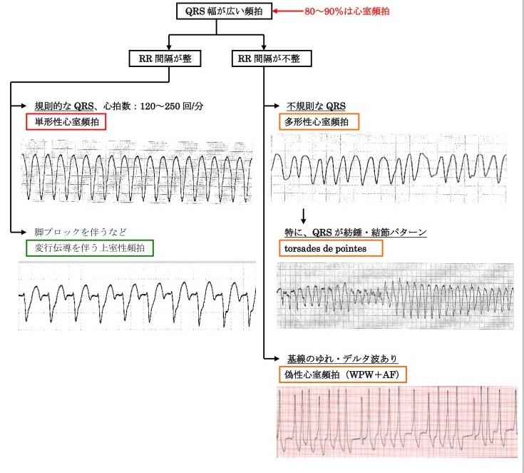 QRS幅の狭い頻拍の診断アルゴリズム