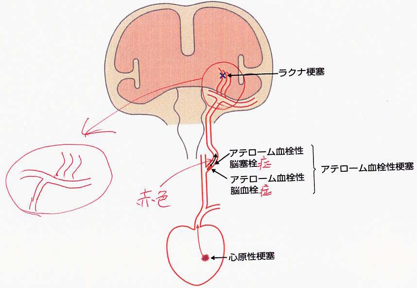 ラクナ梗塞、アテローム血栓性梗塞、心原性梗塞の機序