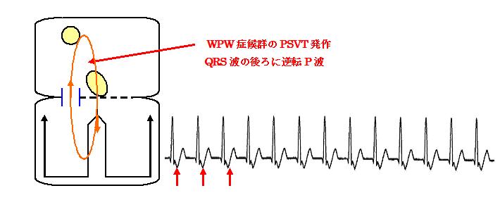 房室回帰性頻拍(AVRT)の機序と心電図
