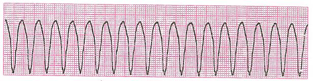 単形性心室頻拍