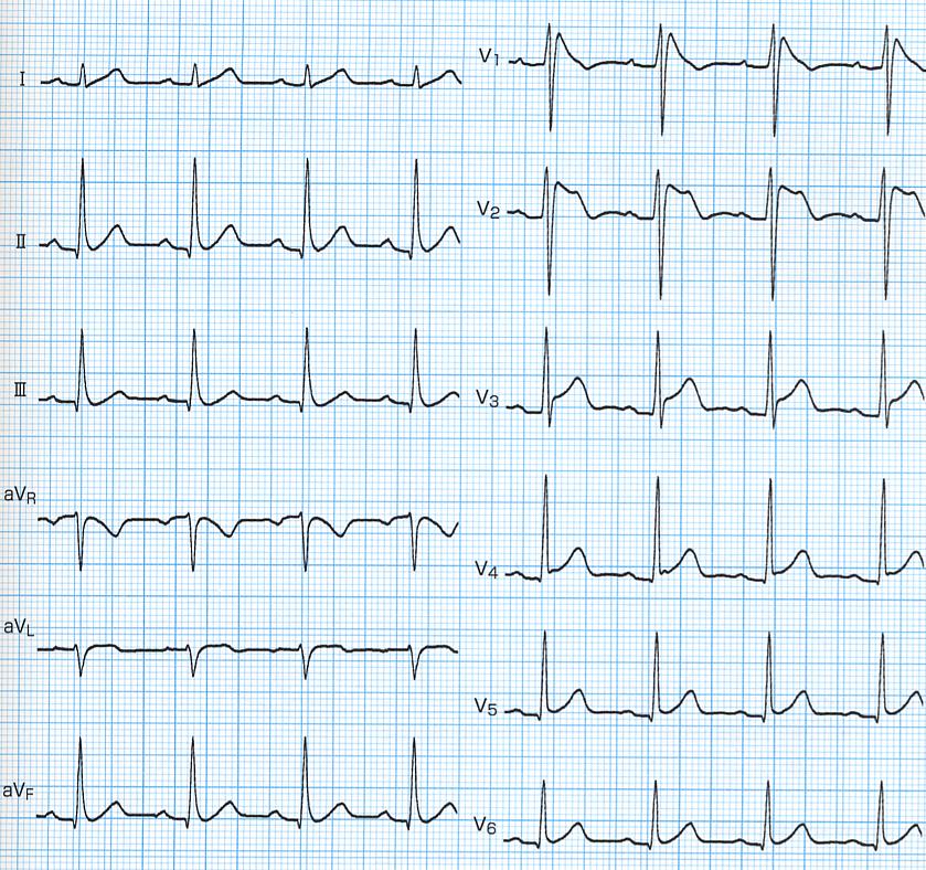 Brugada症候群の心電図