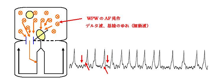 偽性心室頻拍(WPW+AF)の機序と心電図