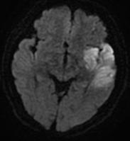脳梗塞のMRI(拡散強調画像)