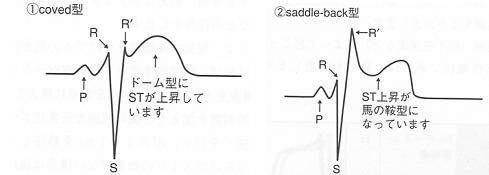 Brugada症候群の心電図2