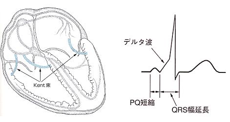 図21-1
