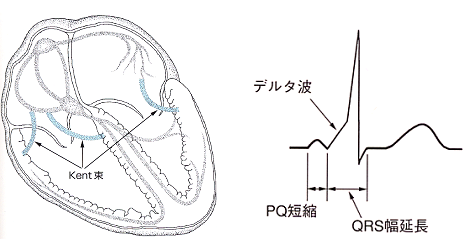 WPW症候群の機序と心電図