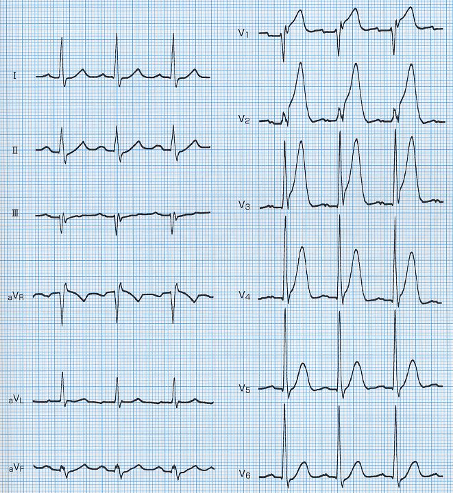 高い超急性期T波の心電図
