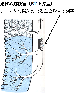 急性心筋梗塞(ST上昇型)