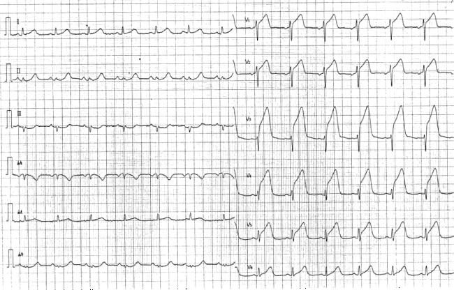 前壁中隔梗塞の心電図